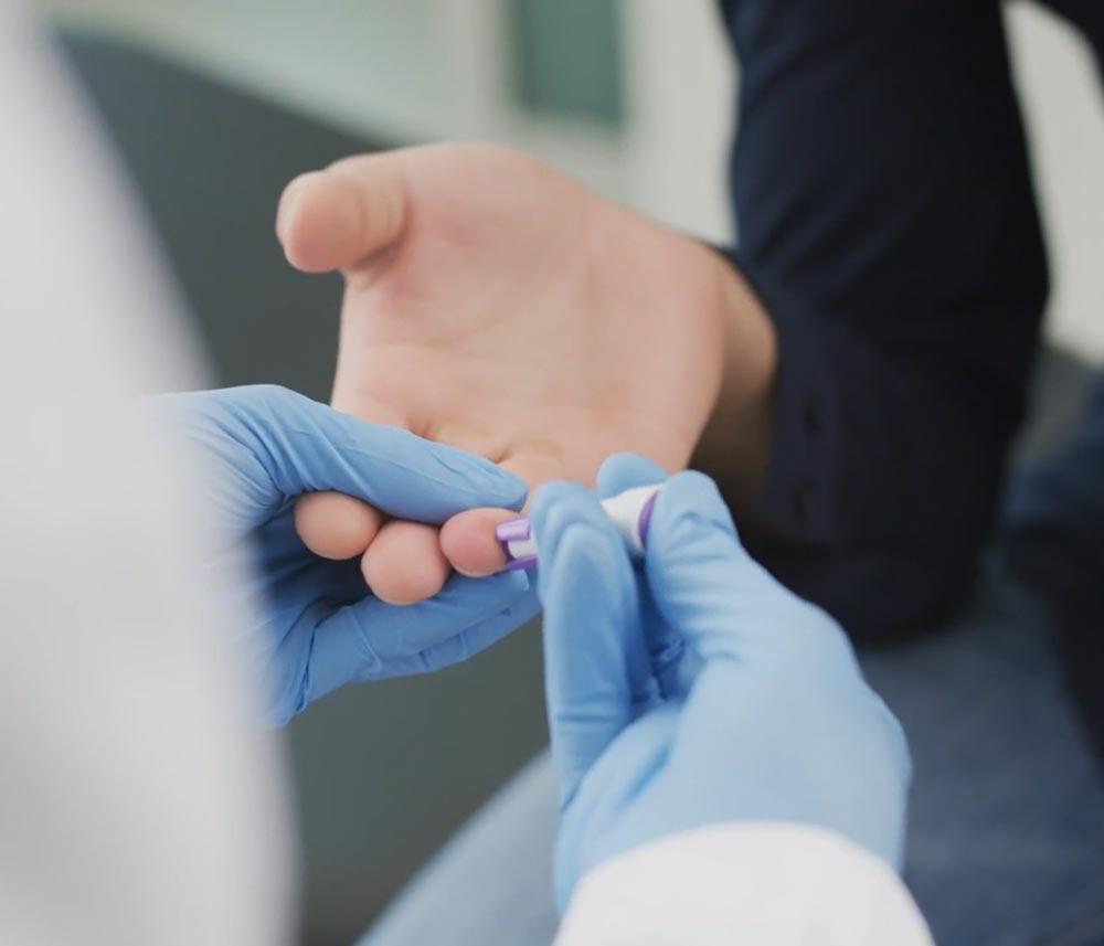 Antistoffentest bloedprik Roche